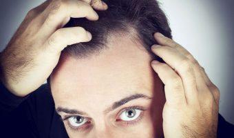 Symptômes de la pelade